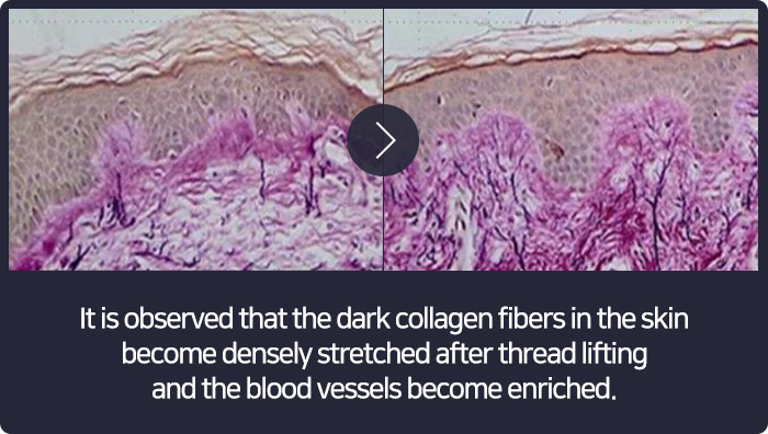 It is observed that the dark collagen fibers in the skin become densely stretched after thread lifting and the blood vessels become enriched.